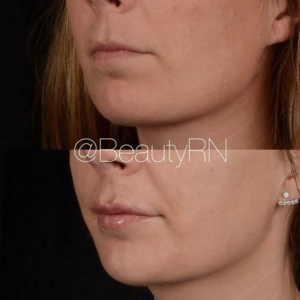 Adding Volume with Lip Injections