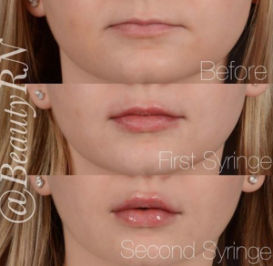 Lip Injections by Our Experts in Kitchener-Waterloo | TCSC
