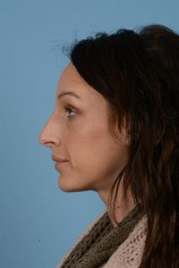 After non surgical rhinoplasty