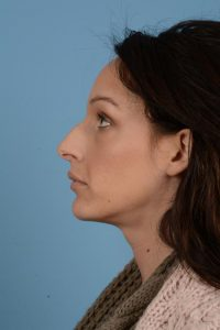 Before non surgical rhinoplasty
