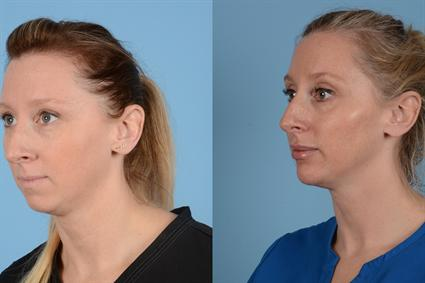 The Cosmetic Surgery Clinic, Waterloo, Chin Filler Before and After