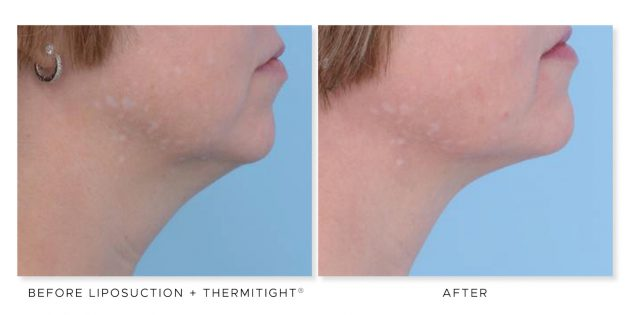 The Cosmetic Surgery Clinic, double chin treatment