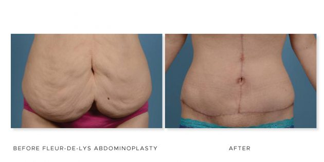 The Cosmetic Surgery Clinic, Abdominoplasty before and after