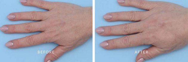 The Cosmetic Surgery Clinic Waterloo, ON - Hand rejuvenation with RADIESSE - Before and After