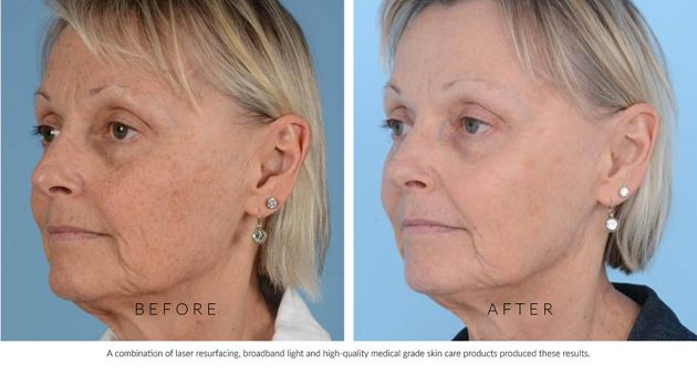 Before & After Laser