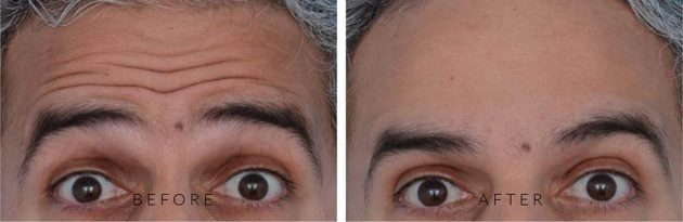 Before & After Injectables