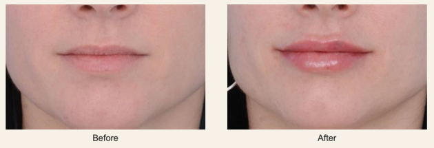 Lip Augmentation Before & After