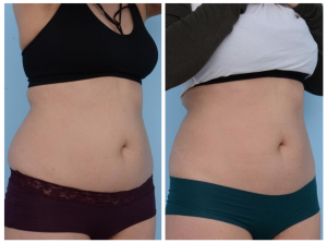 One of our patients before and after CoolSculpting showing that her love handles and tummy have subsided after treatment.