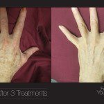 bbl hands before and after