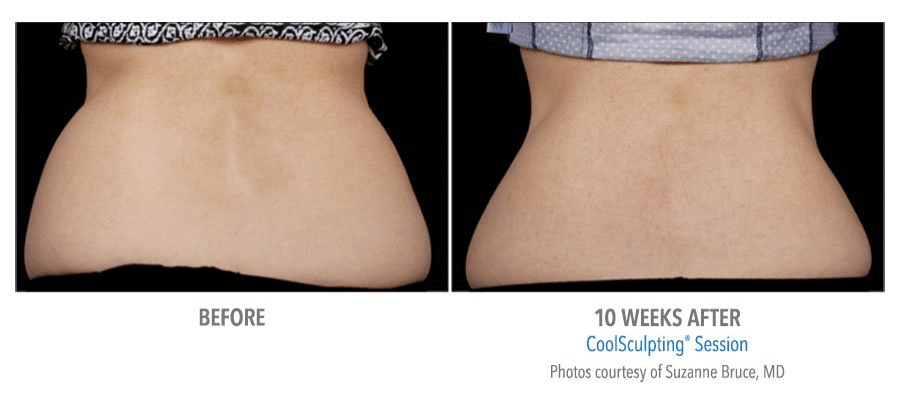 coolsculpting back before and after