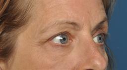Eyelid Lift case #116
