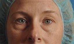 Eyelid Lift case #119