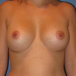Breast Augmentation case #12