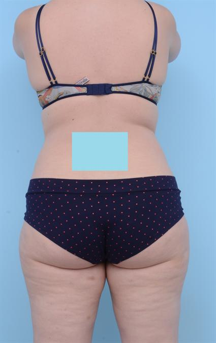 Bra rolls after coolsculpt