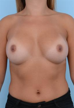 Breast Augmentation case #123