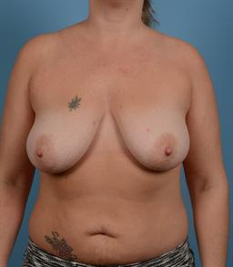 Mastopexy (Breast LIft) case #126