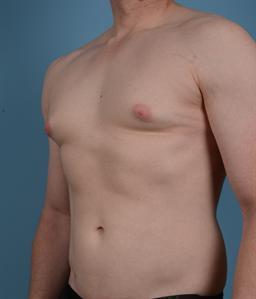 Male Breast Reduction / Gynecomastia case #127