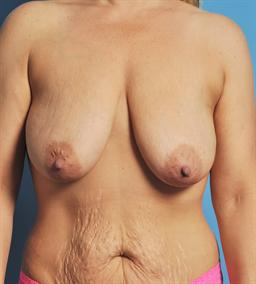 Mastopexy (Breast LIft) case #131