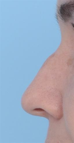 Non-Surgical Injectables case #135