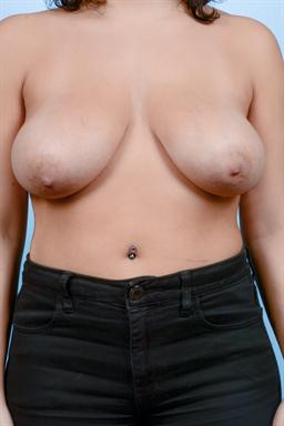Breast Reduction case #144