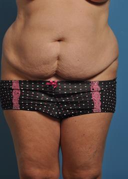 Tummy Tuck case #149