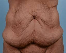Tummy Tuck case #156