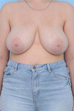 Breast Reduction case #161