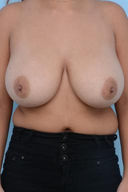 Breast Reduction case #163