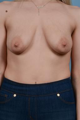 Mastopexy (Breast LIft) case #164