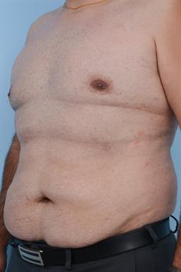 Male Breast Reduction / Gynecomastia case #184