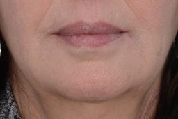 Non-Surgical Injectables case #195