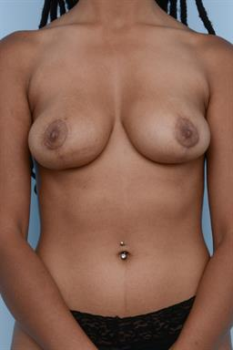 Breast Reduction case #207