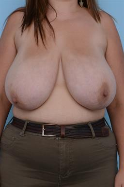 Breast Reduction case #208