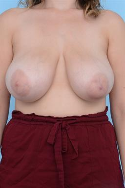 Breast Reduction case #217