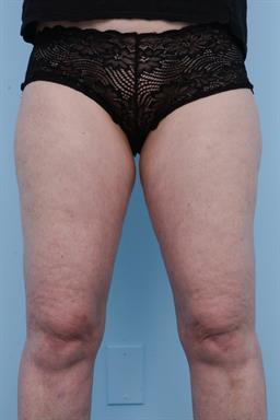 Liposuction case #225