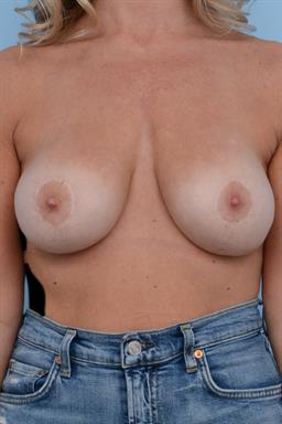 Breast Augmentation case #235