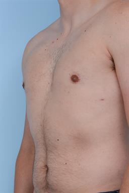 Male Breast Reduction / Gynecomastia case #240