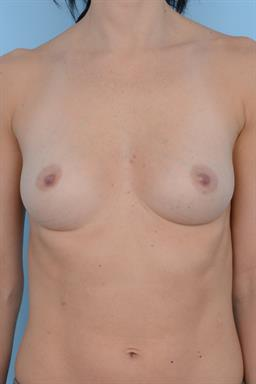 Breast Augmentation case #268