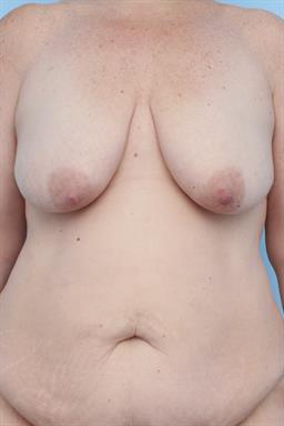 Mastopexy (Breast Lift) case #272