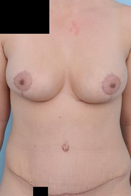 Breast Reduction case #280
