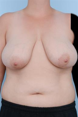 Breast Reduction case #298