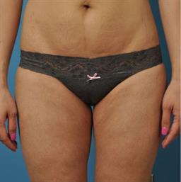 Liposuction case #30