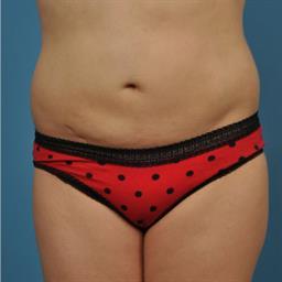 Liposuction case #31