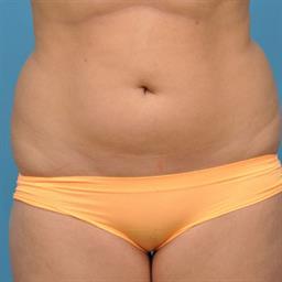 Liposuction case #32