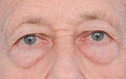 Eyelid Lift case #328