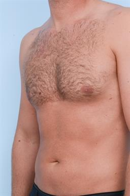 Male Breast Reduction / Gynecomastia case #334