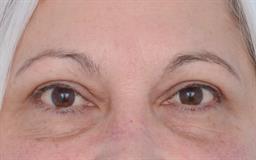 Eyelid Lift case #339
