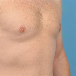 Male Breast Reduction / Gynecomastia case #34