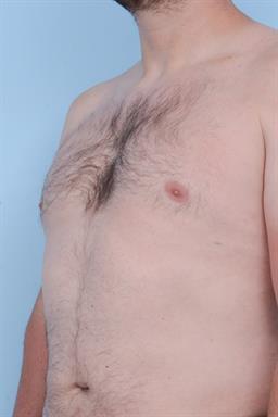 Male Breast Reduction / Gynecomastia case #348