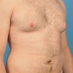 Male Breast Reduction / Gynecomastia case #35